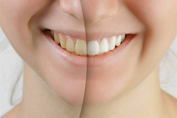 Tooth Whitening treatment at Birchvalley Dental Clinic