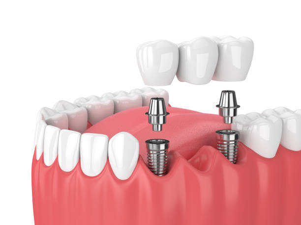 Dental Implants at Birchvalley Dental Clinic